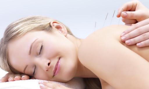 Evde Akupunktur